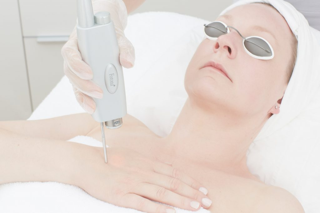 Body Laser Skin Tightening